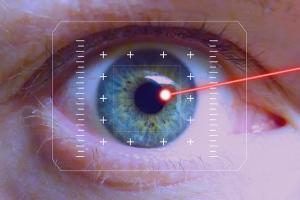 refractive laser eye surgery