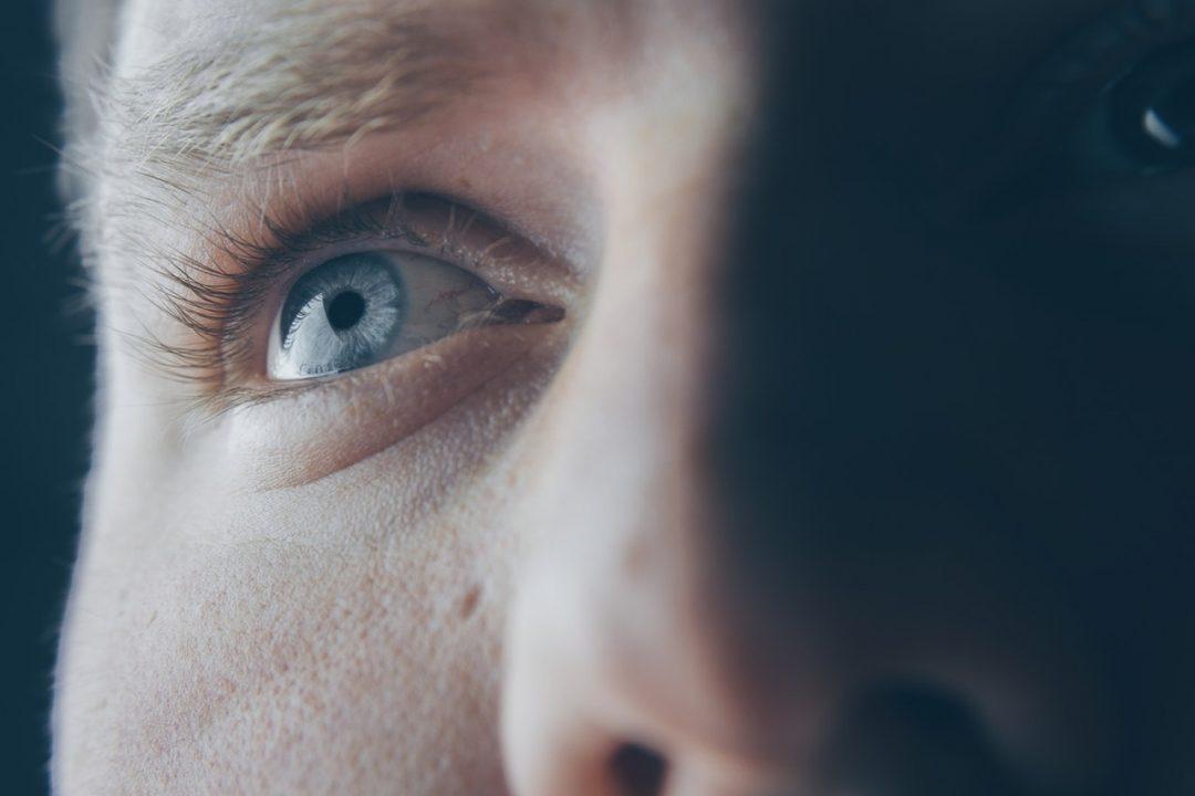 ocular rosacea man looking up close up